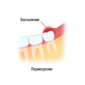 Что делать, если болит зуб мудрости?