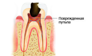 Почему болят зубы? Острая боль