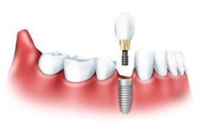 А что Вы знаете про имплантацию зубов?