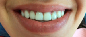 Наращивание зубов в стоматологии