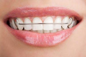 Ортодонтия Сумы