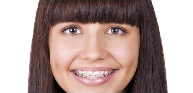 красивые керамические зубы