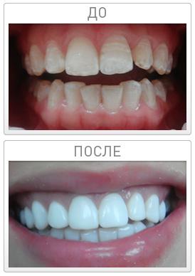 Как сделать зубы белоснежными люминиры