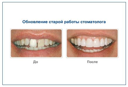 Обновление старой работы стоматолога