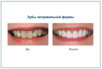 Зубы неправильной формы