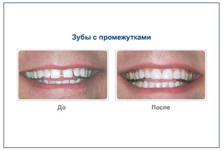 Зубы с промежутками