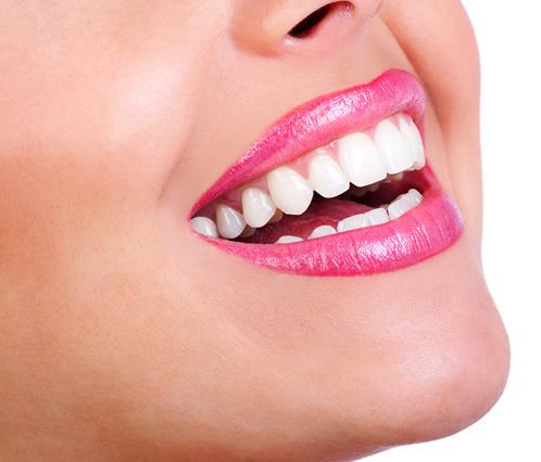 Прямой метод реставрации зубов
