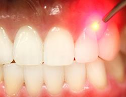 Преимущество применения лазера в стоматологической практике