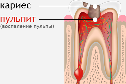 Лечение зубов Стоматологическая клиника