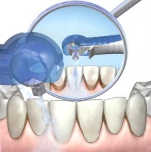 Ультразвук в практической стоматологии