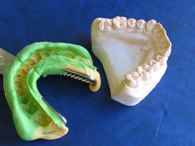Функциональные оттиски при лечении больных с полным отсутствием зубов