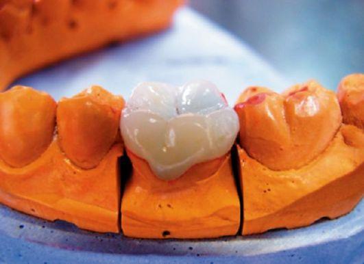 Получение и разметка гипсовых моделей беззубых челюстей