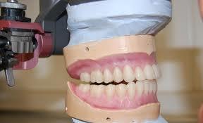 Гербер постановка зубов