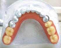 Проверка восковой конструкции протеза и постановки искусственных зубов. Ошибки при определении центрального соотношения челюстей