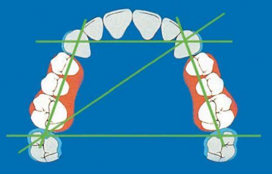 Ориентиры, используемые при конструировании искуственных зубных рядов