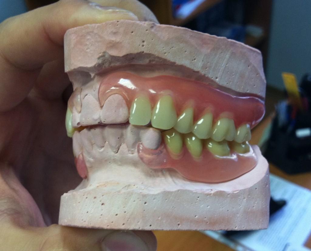 эстетическое отбеливание зубов москва