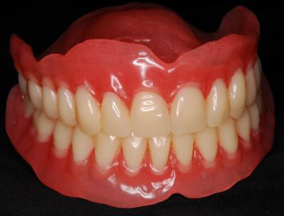 История протезирования съемными пластиночными протезами при полном отсутствии зубов