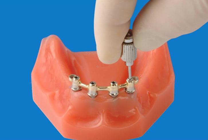 Фиксация протезов на беззубой нижней челюсти с использование внутрикостных имплантов и сферических магнитов