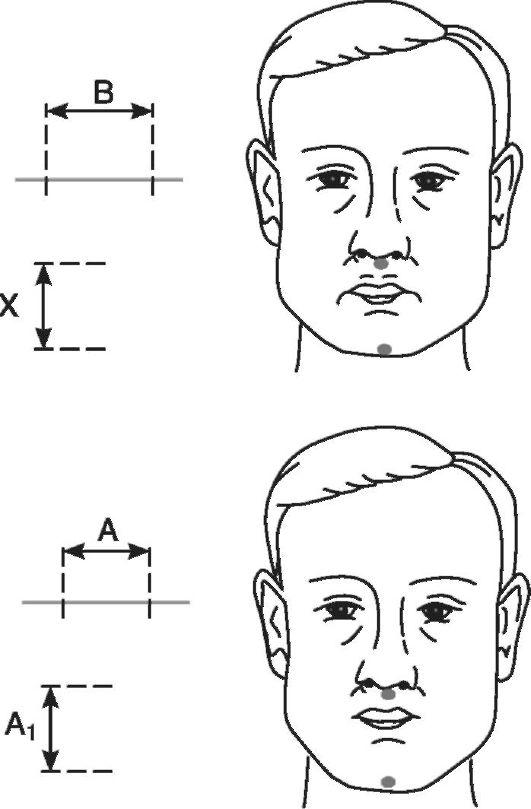 Фотографический метод определения высоты нижнего отдела лица