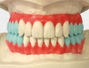 Пришлифовывание искусственных зубных рядов в артикуляторе