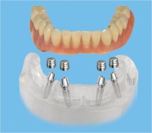 Ортопедическое лечение при полном отсутствии зубов с использованием дентальных имплантов