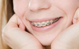 Металлические и сапфировые брекеты на зубы