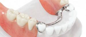 Бюгельное протезирование зубов в Сумах