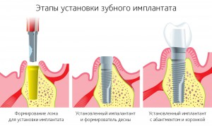 Этапы современной имплантации зуба