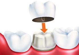 Современные коронки на зубы в наши дни