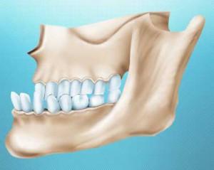 Неправильный прикус и ортодонтическое лечение