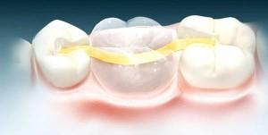 Микропротезирование зубов керамической пломбой