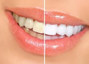 Стоит ли отбеливать зубы?