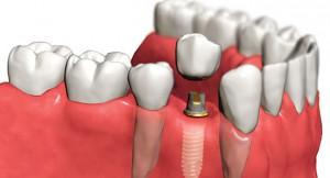 От имплантации зубов к протезированию