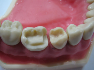 Наращивание и реставрация зубов