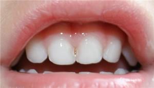 Серебрение зубов у детей и стоит ли делать?
