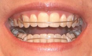 Пора ровнять зубки