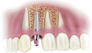 От имплантации к протезированию зубов