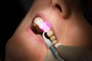 Лазер для протезирования зубов