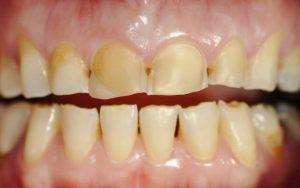 Причины патологического стирания зубов