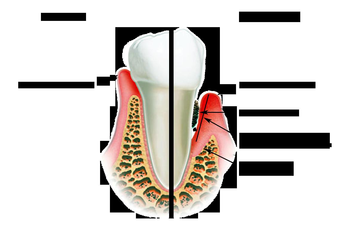 Как укрепить десны зубов в домашних условиях
