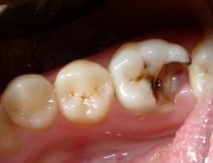 Восстановить зубы за неделю. Миф?