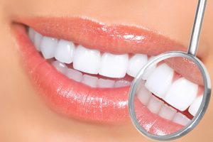 Протезные конструкции для реставрации зубов