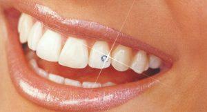 Украшение зубов. Как?