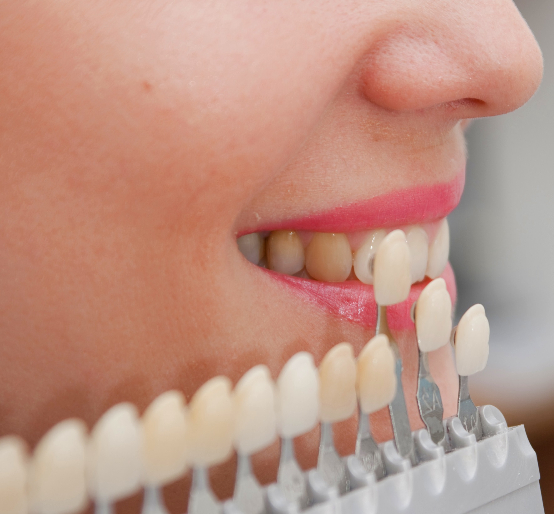 можно ли ставить виниры на нижние зубы
