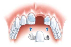 Адгезивное микропротезирование зубов