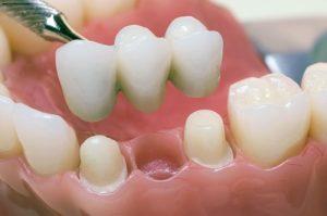 Микропротезирование зубов и надежность