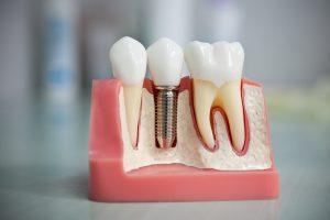 Больно ли делать имплантацию зубов?