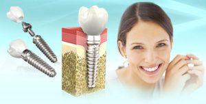 Что важно знать про имплантацию зубов?