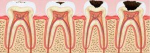Кариес зубов - это не приговор