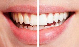 Показания и противопоказания для лазерного отбеливания зубов